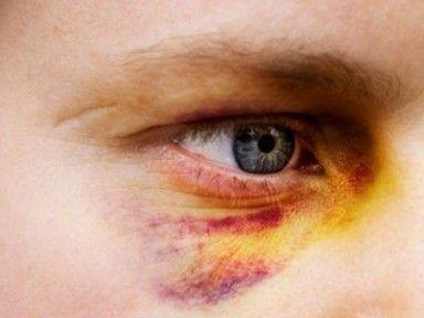 Нанесение телесных повреждений: как классифицируют и какая ответственность предусмотрена