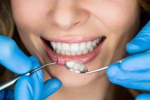 Бесплатное лечение зубов по полису ОМС - определение места и регламента получения квалифицированной помощи